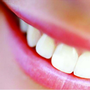 Angel Teeth Whitening
