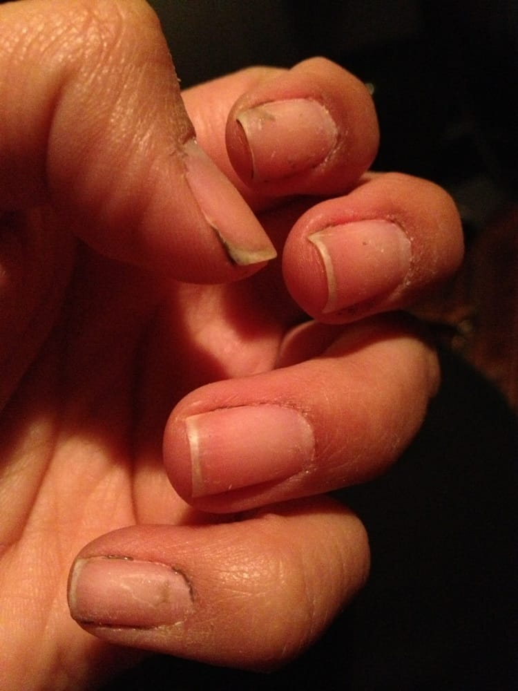Gel nail manicure gone bad!!!! Bloody cuticles! Yuck! :( | Yelp