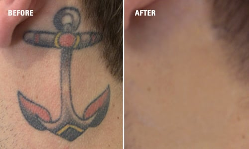 Tattoo removal results before after yelp for Tattoo laser removal near me