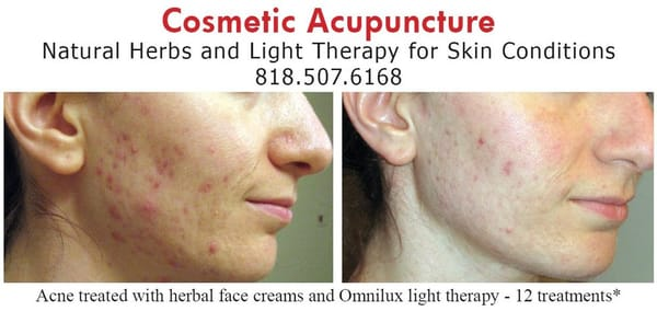 Will facial acupuncture help acne understand
