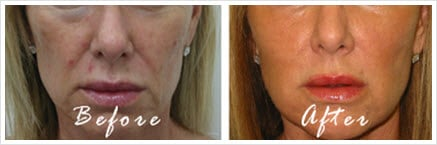 Before And After Radiesse To The Cheeks And Juvederm Ultra