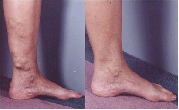 Varicose Vein Ultrasound Guided Sclerotherapy Yelp