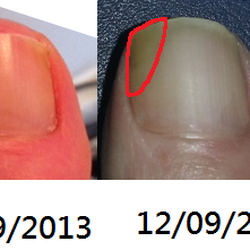 Fungal nail 1 treatment before and after Marion Yau
