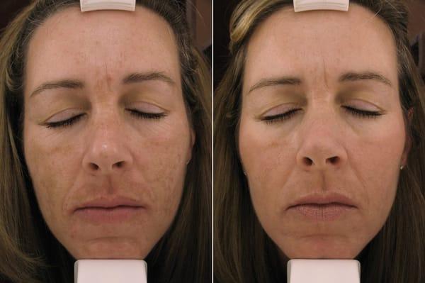 does steroid cream bleach skin