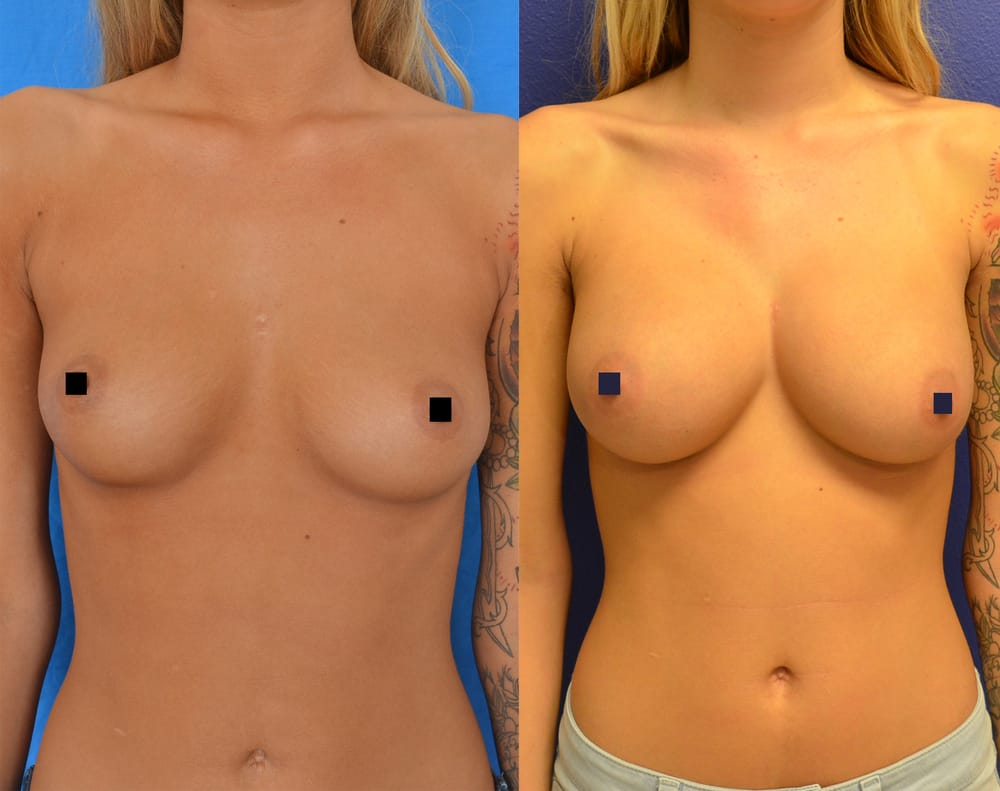3 best breast enhancement pills 2017