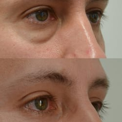 Lower Blepharoplasty & Canthopexy