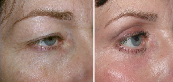 Before and after upper eyelid surgery | Yelp
