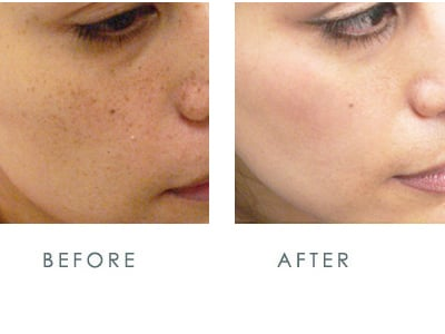 Ipl For Sun Spots Removal Yelp