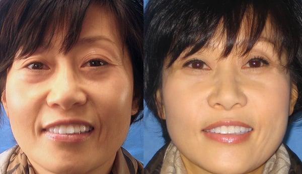 Non Surgical Facelift Quot Liquid Facelift Quot Yelp